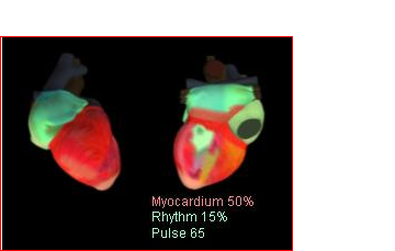 cardiovisor web_html_m6adf561